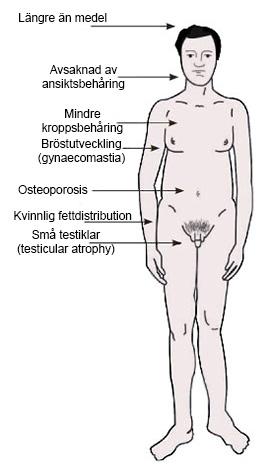 Klinefelters syndrom kännetecken